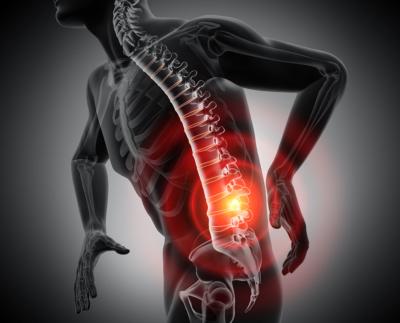 Image illustrant les problemes de dos situes sur la colonne vertebrale, ou outil pour réduire et prévenir les problèmes de dos